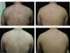 back-hair-4-pictures-before-and-after-copy-2